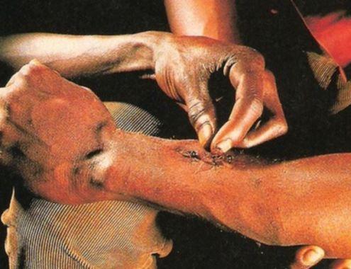 fourmi-point-de-suture2